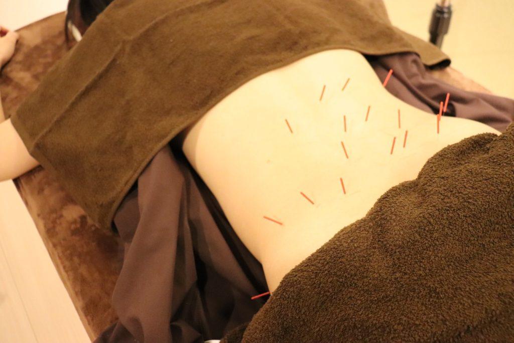 腰痛の鍼施術